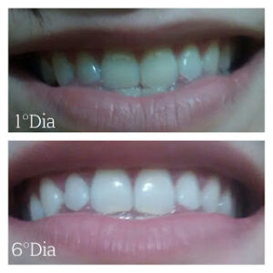 Caneta Clareadora Branqueadora – Dentes Whitening Pen Bright White
